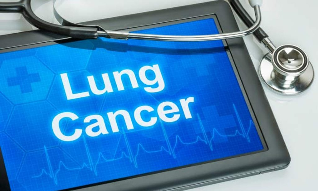 Lung-cancer screening